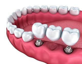 http://clinicadentaloterosenin.es/wp-content/uploads/2016/03/implante0-320x250.jpg