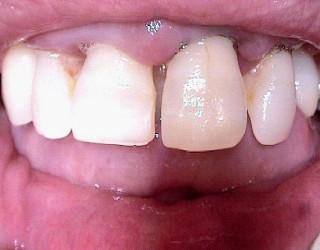 http://clinicadentaloterosenin.es/wp-content/uploads/2016/03/implante2_1-320x250.jpg