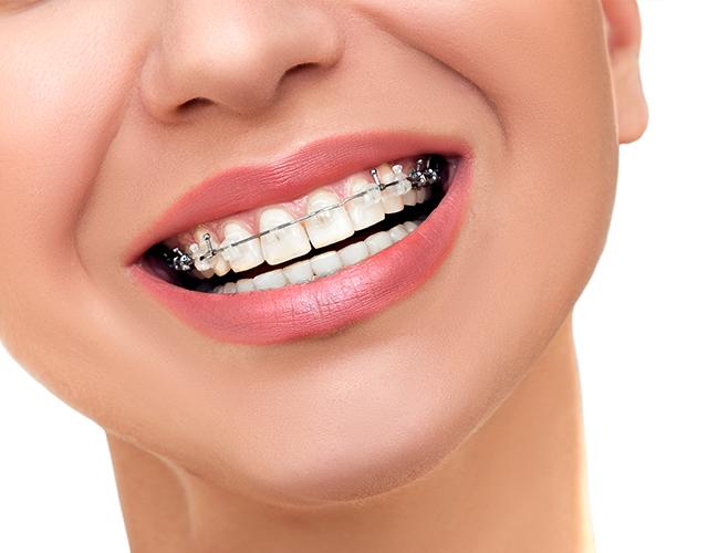 http://clinicadentaloterosenin.es/wp-content/uploads/2016/03/ortodoncia3.jpg