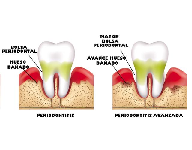 http://clinicadentaloterosenin.es/wp-content/uploads/2016/03/periodoncia2.jpg